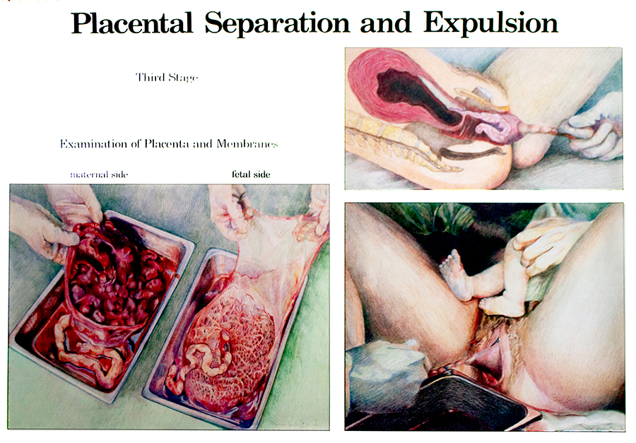 Jan Ruby-Crystal Drawing Placental Separation